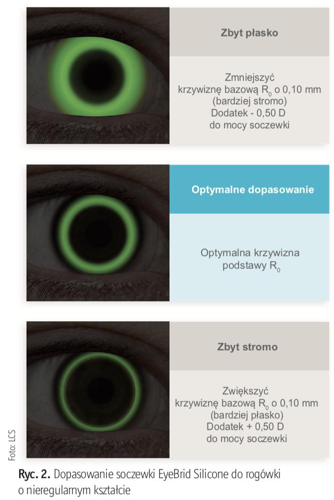 Soczewki hybrydowe - nowe możliwości