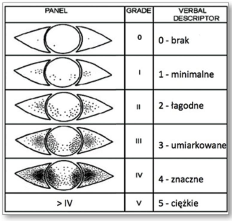 Terapia termiczna EyeBag w leczeniu zespołu suchego oka w przebiegu niewydolności gruczołów Meiboma